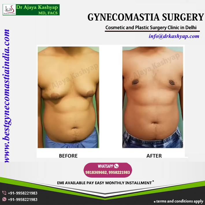 Gynecomastia Surgery Clinic in South Delhi