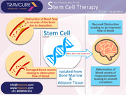 Avail Reasonably Priced Stem Cell Therapy in India for Stroke Treatment