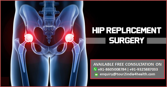 Enjoy Best Cost for Total Hip Replacement Surgery in India