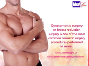 Have you heard of male breast reduction surgery?