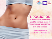 Who is a good candidate for liposuction?