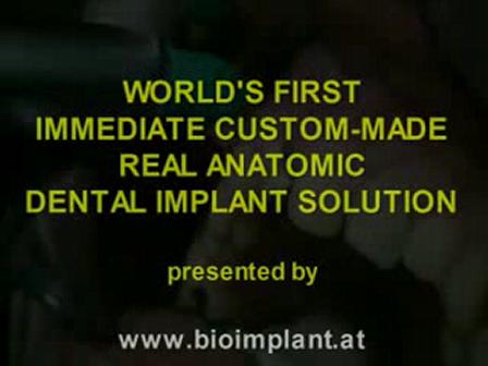 video 6SENSATIONAL: IMPLANT WITHOUT DRILLING AND ABSOLUTE FLAPLESS IN JUST 4 MINUTES. LIVE VIDEO !