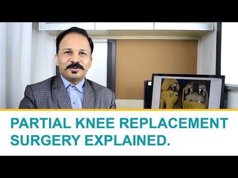 What is Partial Knee Replacement Surgery? - Explained by Dr. Shailendra Patil