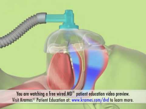 Illustrated Overview of Obstructive Sleep Apnoea   Krames Patient Education
