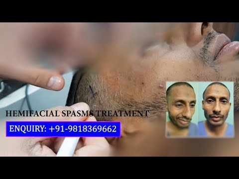 Non Surgical Treatment for Hemifacial Spasm by Dr. Ajaya Kashyap, Delhi, India