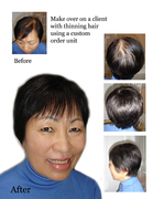 Hair Replacement Unit for Thinning hair Problem