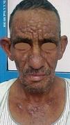 Actinic Reticuloid (Chronic actinic dermatitis )
