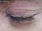 Lipoid Proteinosis (moniliform blepharosis)
