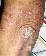 Chronic plaque psoriasis