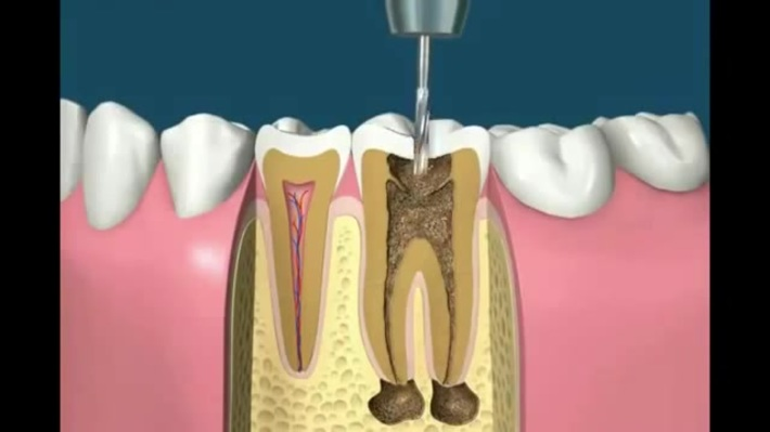 Root Canal Treatment Animation