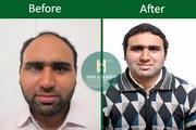 Hair Transplant in Delhi