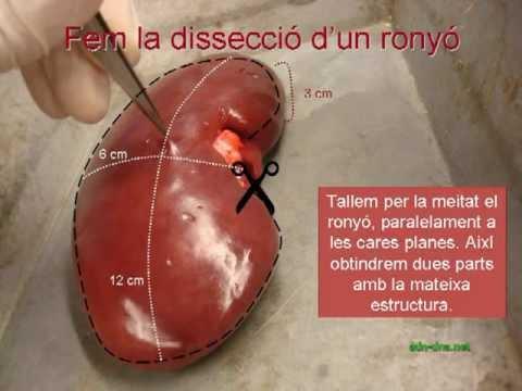 adn-dna.net BN0005 Dissecció de ronyó