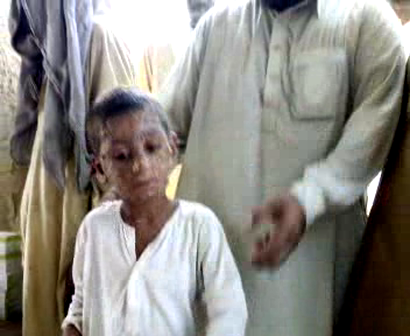 2010 Flood in Pakistan and Skin Diseases. This Child Washes His Face with Flood Water