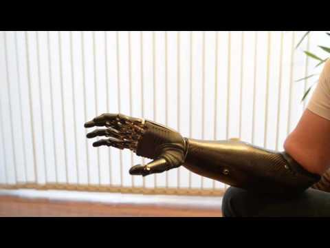 bebionic - Nigel Ackland