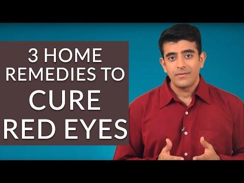 How To Treat Red Eyes/Bloodshot Eyes