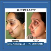 Rhinoplasty in Delhi at MedSpa