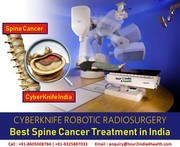 CyberKnife Radiosurgery - Best Spine Cancer Treatment in India