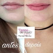 antes e depois lábios
