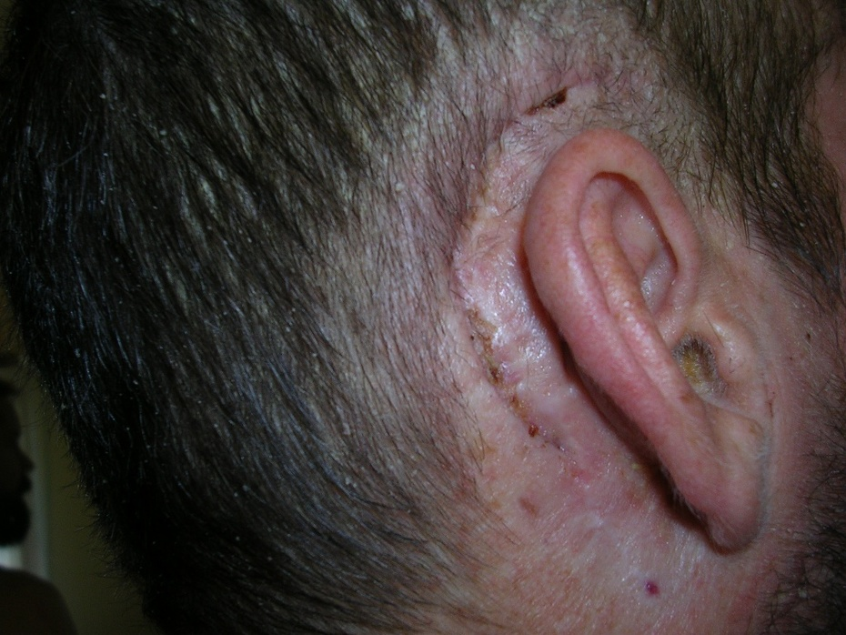 post-op scar 7-6-11