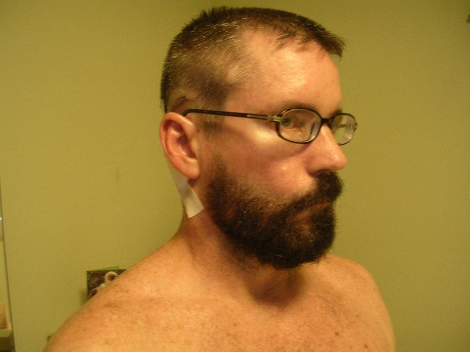 post-op home 6-17 pic1