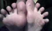 Flexed toes
