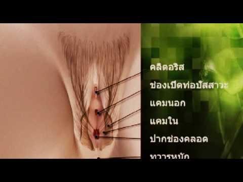 anisex
