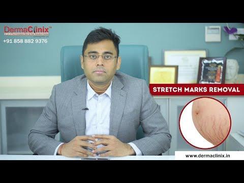 Best Stretch Marks Removal Treatment in Delhi - DermaClinix South Delhi | Dr Amrendra Kumar, MD