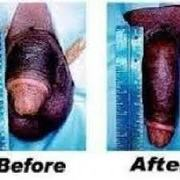##@@ PENIS ENLARGEMENT CREAMS & PILLS IN NORTHWEST, LIMPOPO, DURBAN, AND CAPE TOWN@@@###