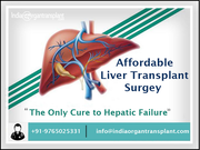 Affordable Liver Transplant Surgey: The Only Cure to Hepatic Failure