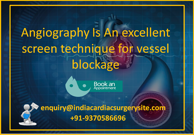 Angiography Is An Excellent Screen Technique For Vessel Blockage