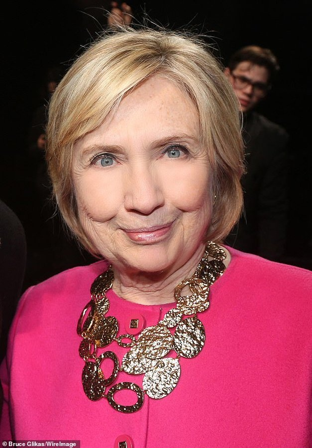 Botox Hillary
