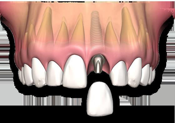 How Missing Teeth create problems?