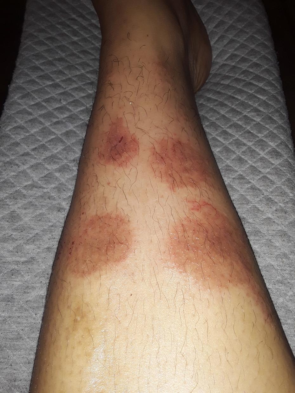 Discoid Dermatitis / Nummular Eczema (Flare Up)