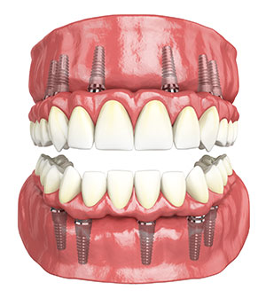 Benefits of Full Mouth Rehabilitation