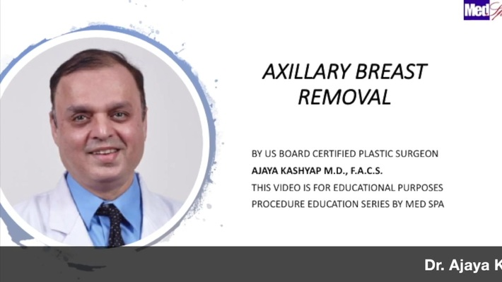 Axillary Breast Removal Surgery by Dr. Ajaya Kashyap