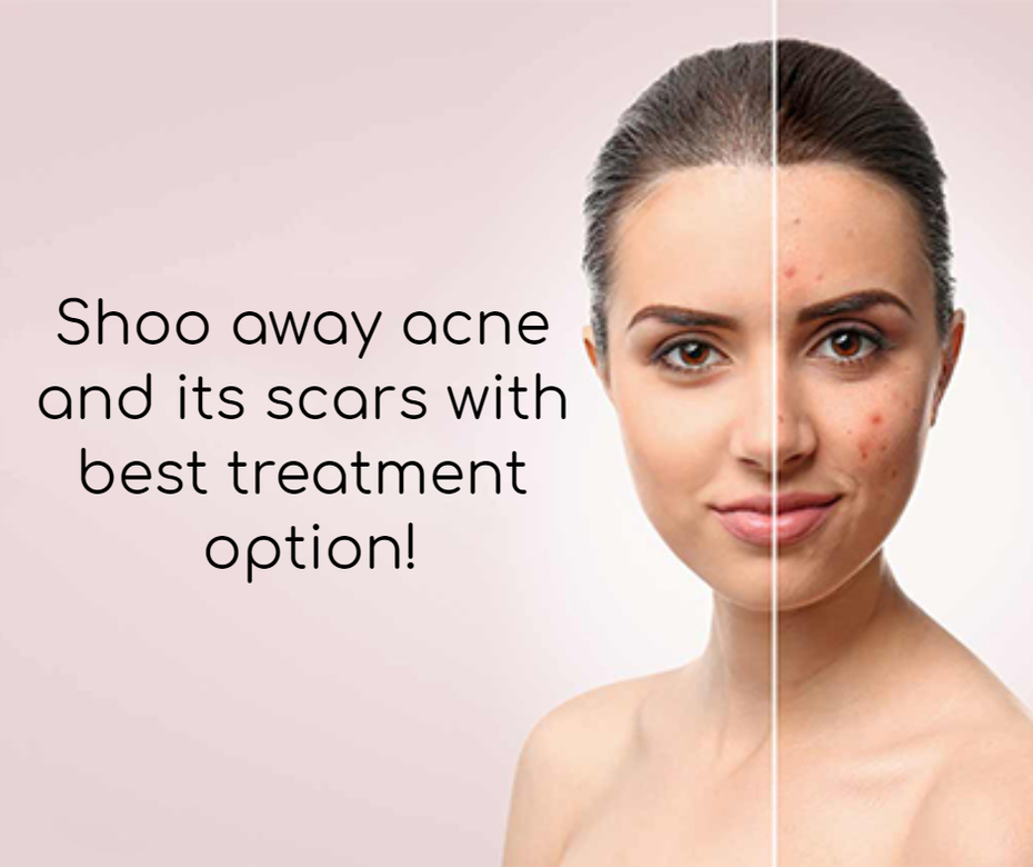 Shoo away acne and its scars with best treatment option!