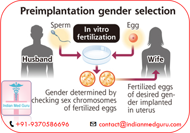 Gender Selection in India - The Freedom To Balance Your Family