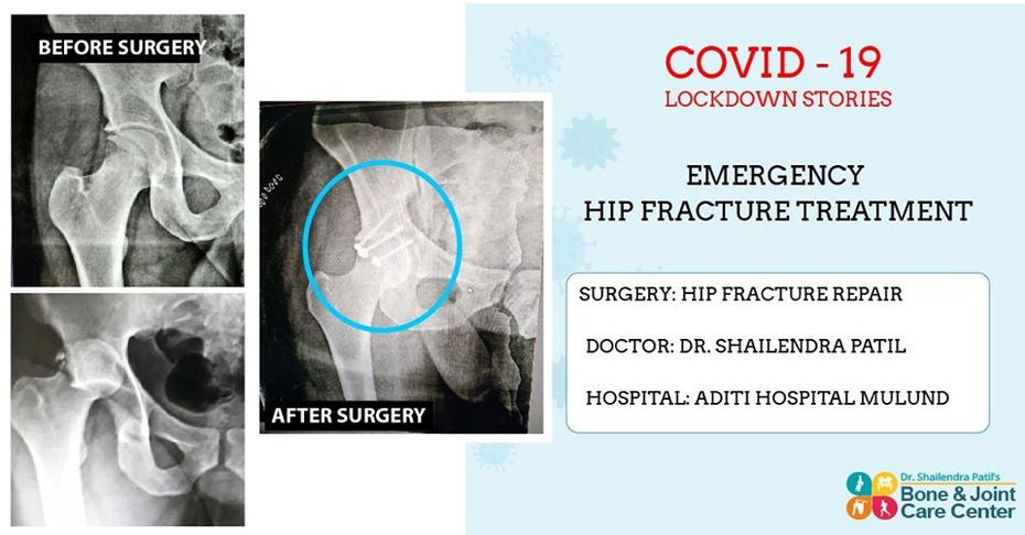 Bone and Joint Care Center Mulund: Emergency Surgery Of Hips