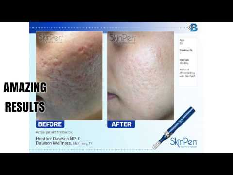 Advanced SkinPen Skincare in Apple Valley, Eagan, Prior Lake & Savage MN