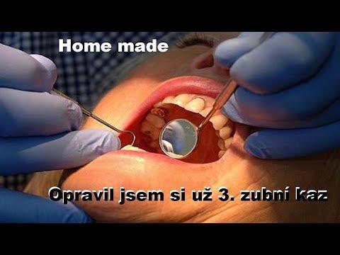 """Domácí stomatologie, aneb """"zubařina"""" po Česku CZ HD"""