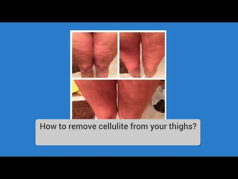 Remove Cellulite With An All-Natural Skin Cream