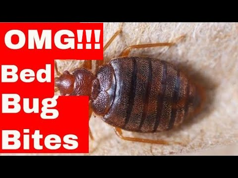 5 Unusual Hacks To Dramatically Cure Bed Bug Bites (Easy to Follow Tips)