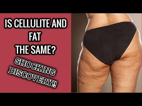 Are Cellulite And Fat The Same