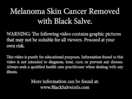 Melanoma_Skin_Cancer -
