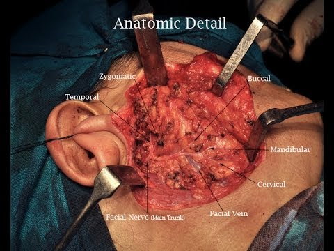 Superficial Parotidectomy (Full surgery  Video with narration)