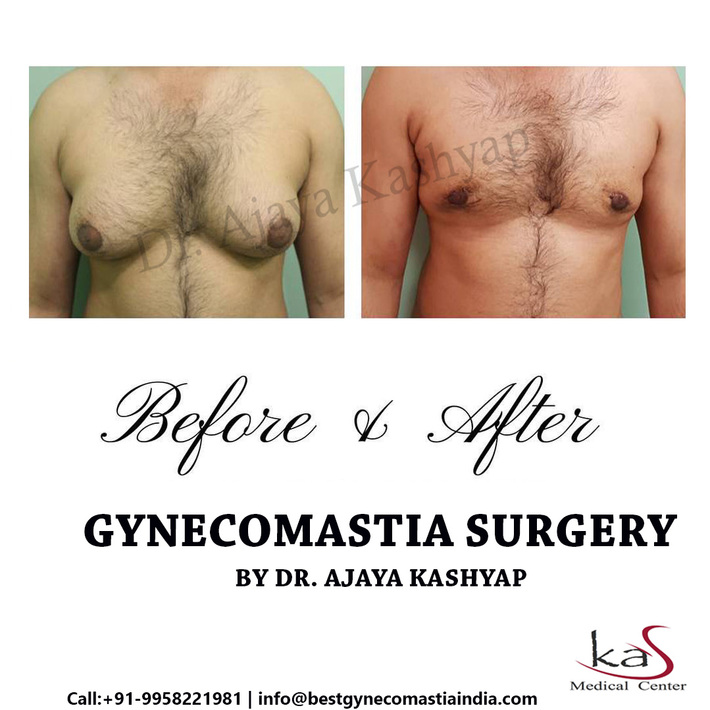 Gynecomastia Surgery done by Dr Ajaya Kashyap from KAS Medical Center, Delhi