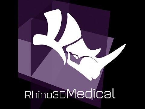 Caso fractura del pelvis visto con Rhino3DMedical