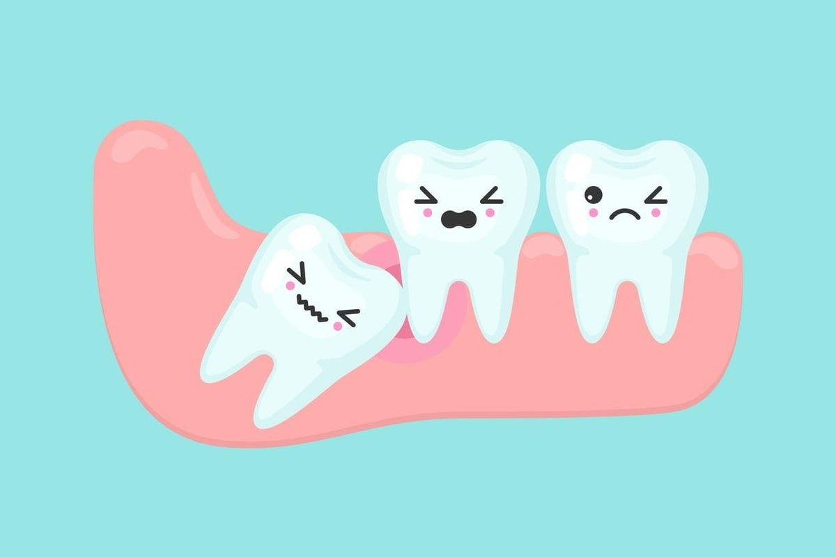 Dental Care: When Should You Press The Panic Button?