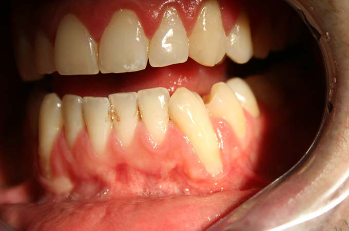 Gum Graft Surgery in Astoria, NY